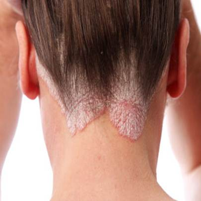 psoriasis treatment in Gurgaon