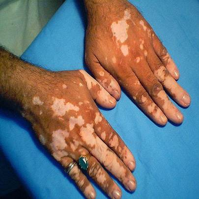 Vitiligo treatment in gurgaon